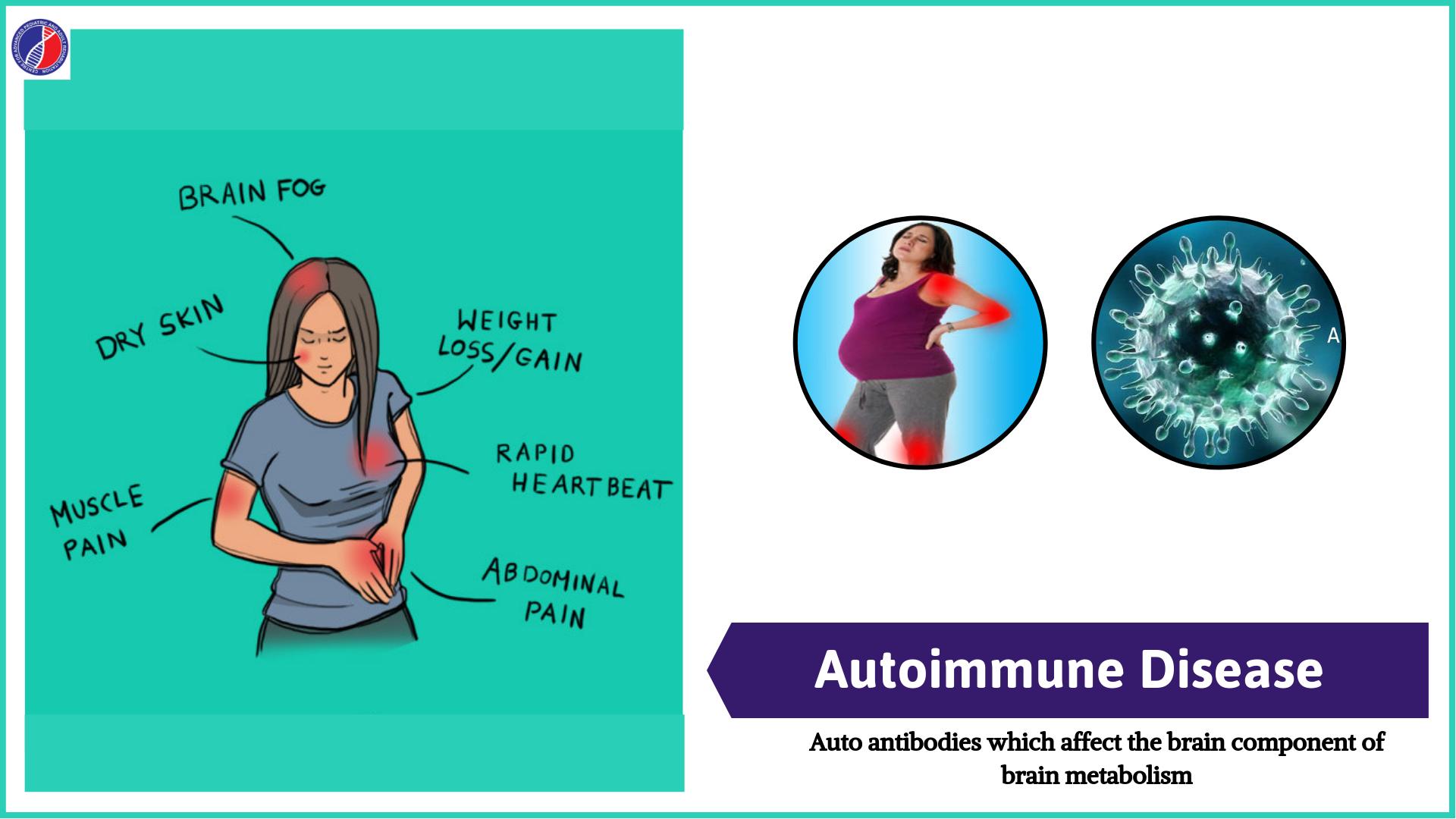 Autoimmune Disease | Best Centre for Autism in Bangalore